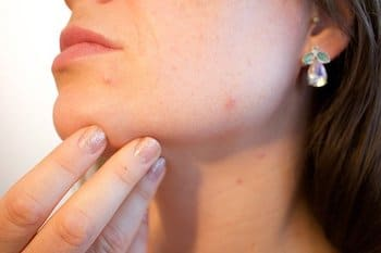 CBD Oil against acne